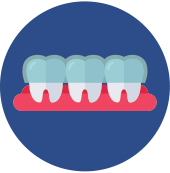 Digital illustration of teeth with blue caps over the top.